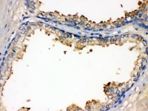 Anti-BMPR1B Rabbit Polyclonal Antibody