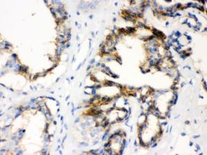 Anti-CTGF Rabbit Polyclonal Antibody