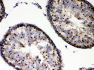 Anti-EBAG9 Rabbit Polyclonal Antibody