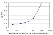 Anti-CD40L Antibody Pair