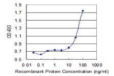 Anti-S100 B Mouse Monoclonal Antibody (Biotin)