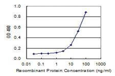 Anti-RGS20 Polyclonal Antibody Pair
