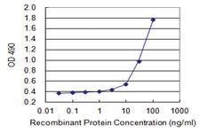Anti-SPINK1 Mouse Monoclonal Antibody (Biotin)