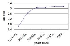 Anti-CNN1 Mouse Monoclonal Antibody (Biotin)
