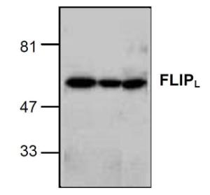 Western blot analysis of FLIP in HeLa (left), Jurkat (middle) and K562 (right) cell lysates