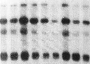 DNA labelling, Amersham Rediprime II™ DNA Labelling System