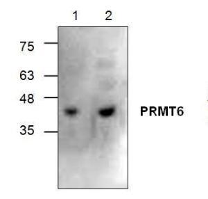 Western blot analysis of PRMT6 using Jurkat cell lysate (Lane1 & 2).