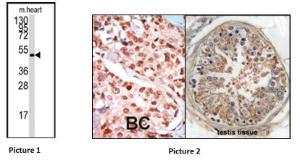 Anti-AMPK beta Rabbit Polyclonal Antibody