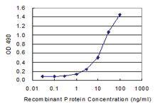Anti-MREG Polyclonal Antibody Pair