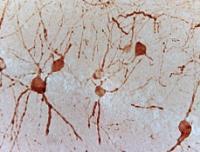 IHC-P of mice brain tissue (GAD67 antibody at 1:200)
