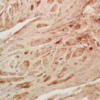 IHC-P of rat heart tissue (dilution at:1:200) using GDF8 antibody