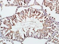 Immunohistochemical staining of rat testis tissue using Gelsolin antibody.