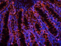 IF image of rat colon tissue using anti-Gremlin 1 (primary antibody at 2.5 ug/ml)