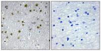 Immunohistochemical analysis of formalin-fixed and paraffin-embedded human brain tissue using NRIP2 antibody